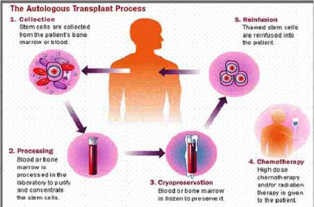 الدكتور راهول بهارجافا أفضل أخصائي الأورام Haemato في الهند أخصائي سرطان الدم الهند