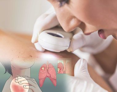 Best Hospitals Skin Cancer Treatment in India