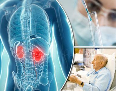 Best Hospitals Kidney Cancer Treatment in India