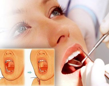 TOP 20 Affordable Mouth Cancer Hospital India| Oral Cancer