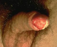 Squamous Cell Carcinoma Treatment India Clip Image003