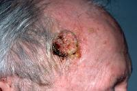 Squamous Cell Carcinoma Treatment India Clip Image005